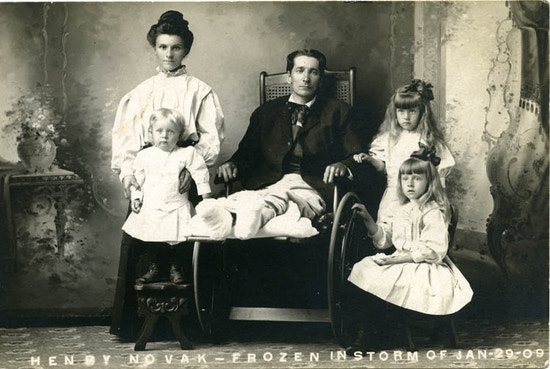 Man in wheelchair with lower legs bandaged.  Surrounded by woman and three young girls.